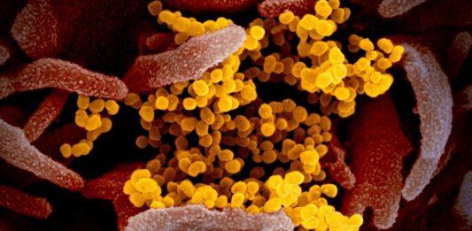 microscopio-elettronico-SARS-CoV-2